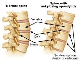 Ankylosing Spondylitis index