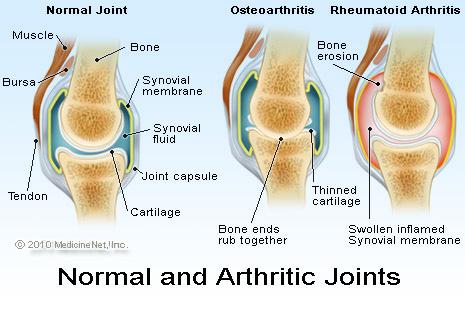 Arthritic joints