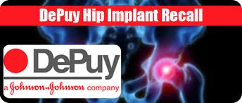 Depuy Recall 2 images