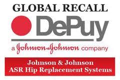 Depuy Recall 5 images
