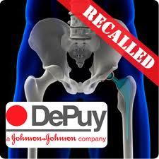 Depuy Recall images