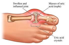 Gout images