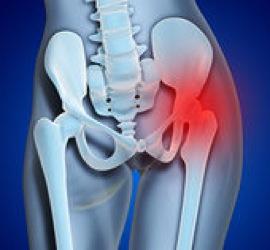 Hip Pain 26 4193R 882