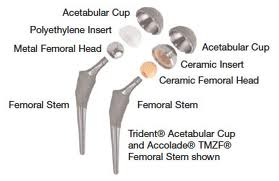 Ceramic Hip Joint Replacement Devices (1/6)