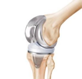 Zimmer knee recall