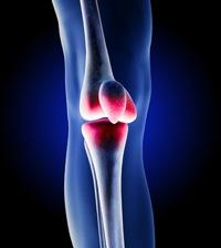 Zimmer Recalls NexGen Knee Replacement Component | Earl's View