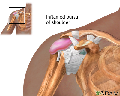 bursitis | earl's view, Human Body