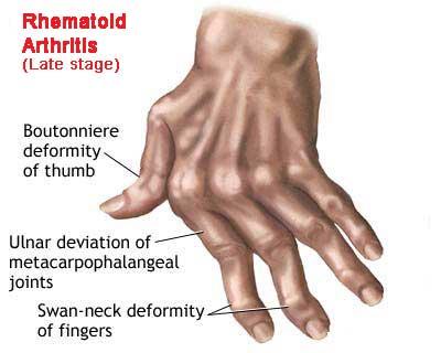 Image result for RHEUMATOID ARTHRITIS (RA)