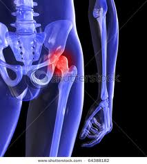 Hip pain 12 images